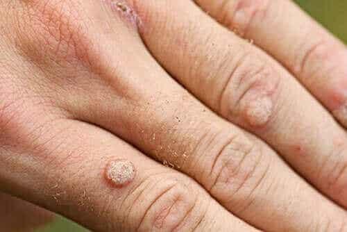 Typer af vorter og deres behandling