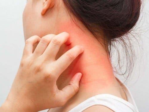 Kvinde med rød kløe på hals