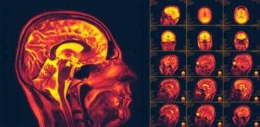 Hvad er neuroplasticitet i hjernen?