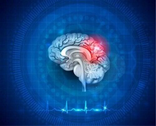 Neuroplasticitet illustreres af hjerne med rødt lys