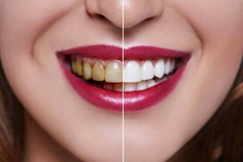 Kvinde med delvis hvide og delvis gule tænder