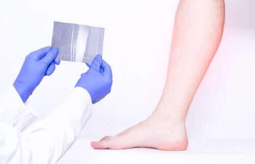 Læge tjekker for en persons lægmuskler