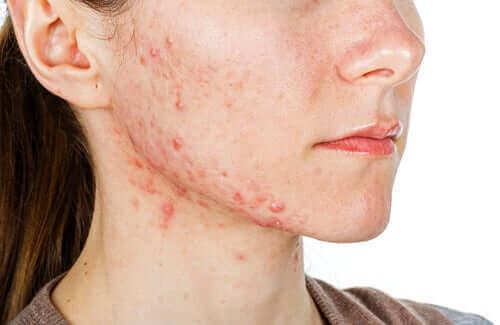 Isotretinoin er et lægemiddel, der anvendes i de mest alvorlige tilfælde af akne