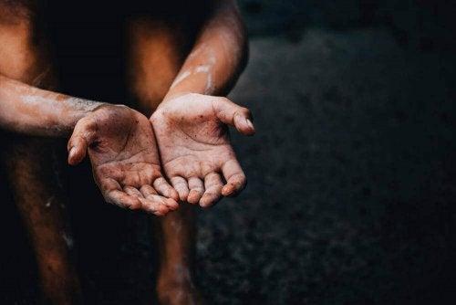 Person med meget tørre hænder