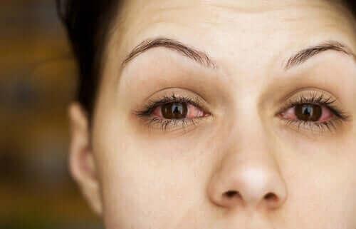 Kvinde med tørre øjne