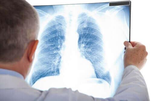 Læge tjekker røntgen for knude i lungerne