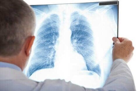 Røntgen af patient med lungehindebetændelse