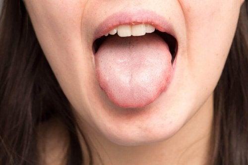 Kvinde med tungen ud af munden viser tykt spyt