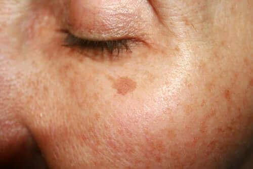 Modermærker og skønhedspletter i ansigt