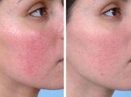 Kvinde illustrerer resultatet af behandling af rosacea