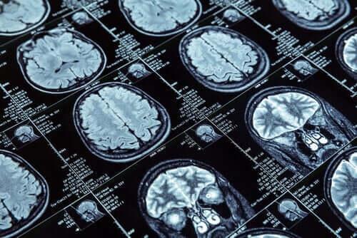 Scanning af hjerner hos personer med antisocial adfærd