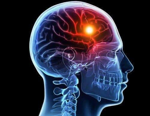 Illustration af emboli i hjernen