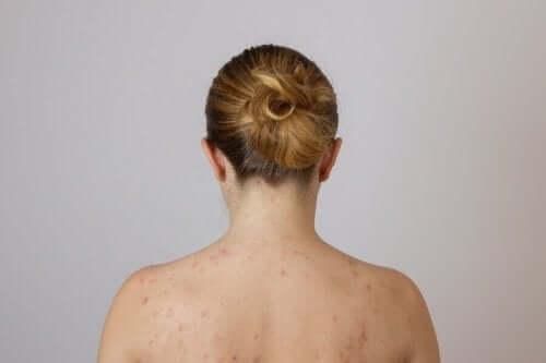 Kvinde med fedtknuder på ryggen