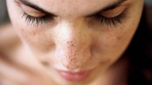 Kvinde med fregner på næsen