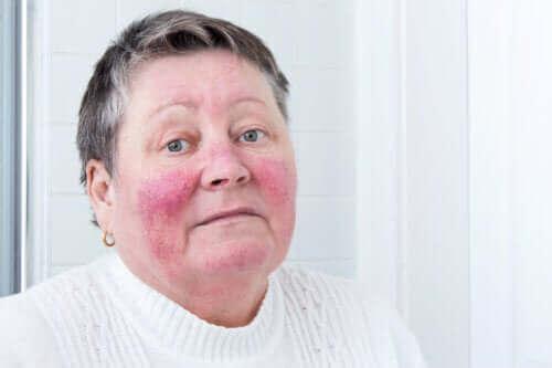 Årsager og symptomer på rosacea
