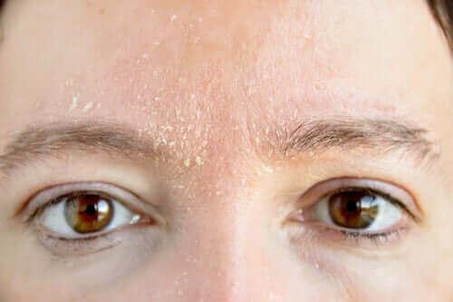 Kvinde med tør hud i ansigtet