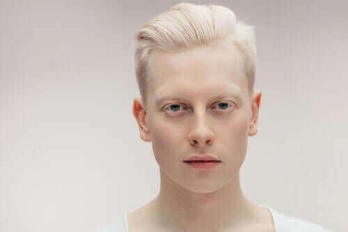 Lær alt, hvad du bør vide om albinisme