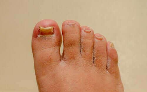 Virker midler mod neglesvamp på hænder og fødder?
