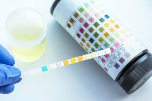 Hvad kan man se i en urinprøve?
