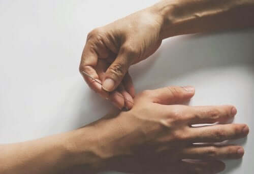 Akupunktur mod neuropatisk smerte