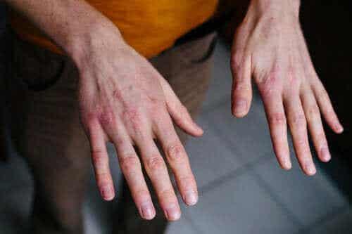 Tørre sprukne hænder: Beskyttelse mod kulden