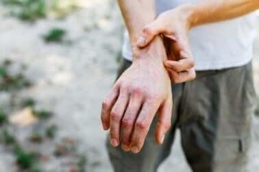 Person klør sin hånd