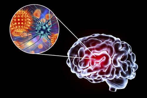 Hjernebetændelse: Symptomer, årsager og behandling