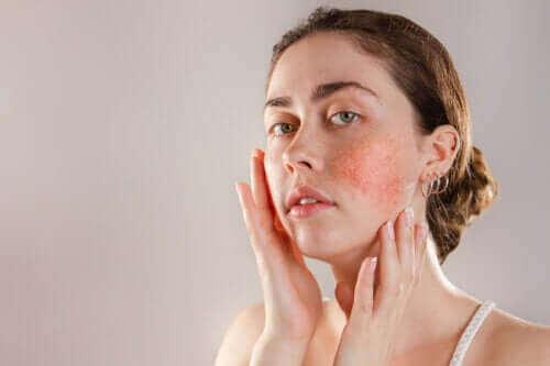 Reaktiv hud: Symptomer, årsager og behandling