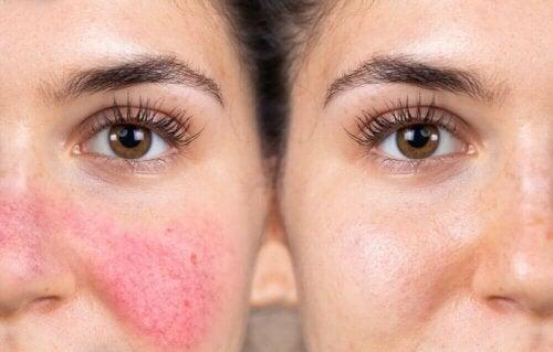 Kvinde med sart og reaktiv hud