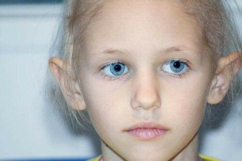 Pige med retinoblastom