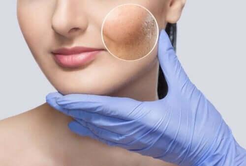 Rynket hud i kvindes ansigt