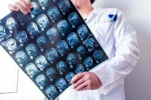 Læge med scanninger af hjerne