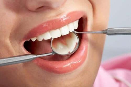 Kvinde får lavet tandlægetjek