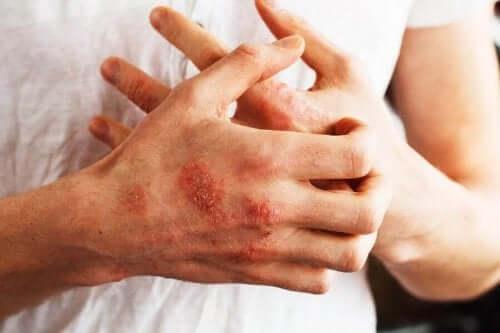 Du kan bruge sarsaparilrod som et hjælpestof til behandling af psoriasis