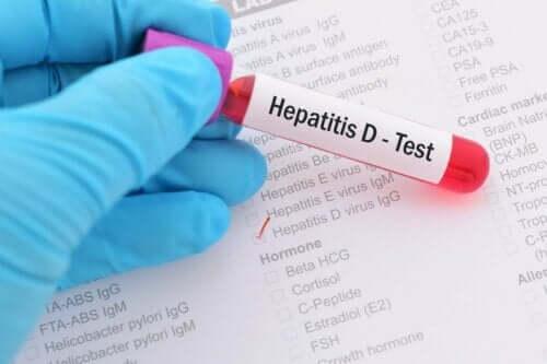 Test af hepatitis D