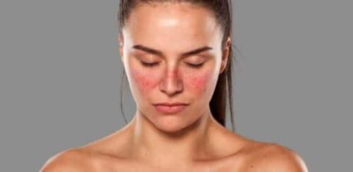 Lupus har et karakteristisk symptom på huden i ansigtet, formet som sommerfuglvinger