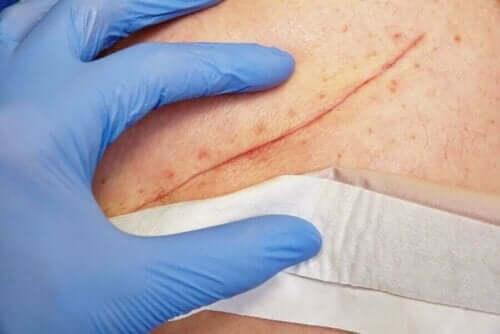 Klorhexidin kan bruges direkte på sår