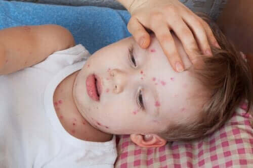 Sådan kan man behandle nældefeber hos børn