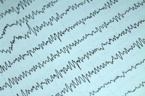 Sådan kan man håndtere epilepsi og amning