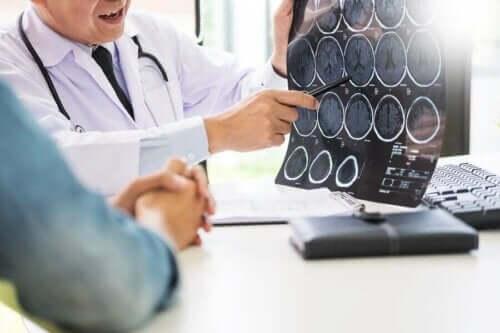 Scanninger af hjerne forklares af læge