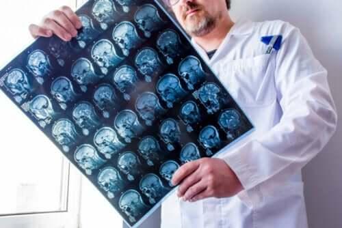 Scanninger af hjerne kan vise forskellige typer af epilepsi