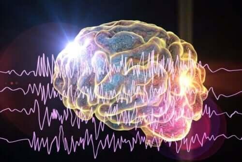 Illustration af nerver i hjernen viser de forskellige typer af epilepsi