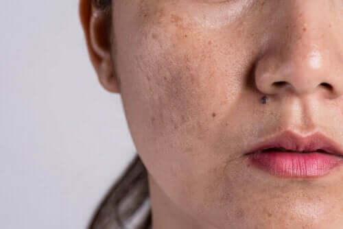 Melasma er eksempel på ændringer i huden under graviditet