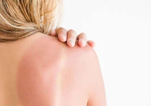 Anbefalinger og pleje af solskoldninger