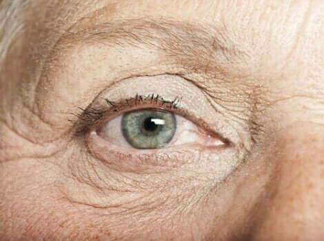 Fregner i øjet er som regel noget, man fødes med