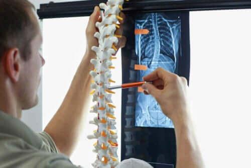 Læge illustrerer skoliose hos børn på model af rygrad