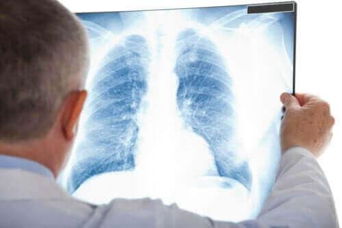 Hvad er kold lungebetændelse?