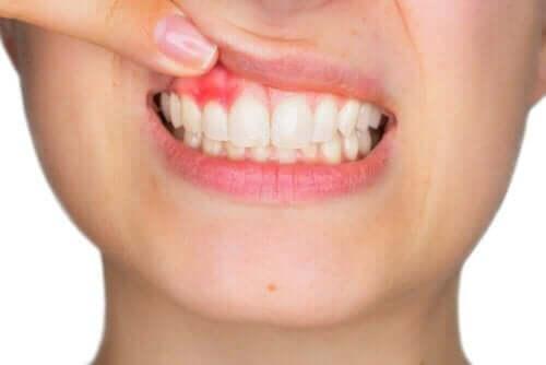Tandkødsbetændelse kan behandles med hyaluronsyre