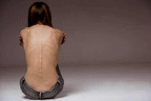 Sadomasochistisk anoreksi: En stadig mere gængs spiseforstyrrelse