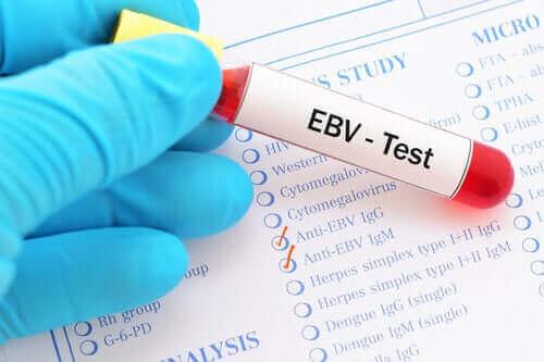 Test af Epstein-Barr virus